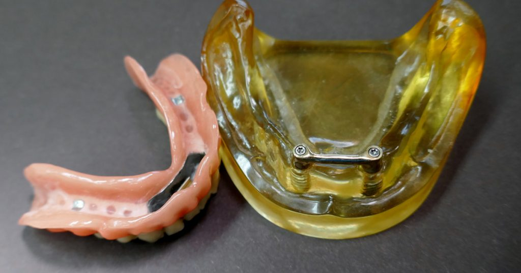modell-mit-implantaten-und-steg-und-prothese